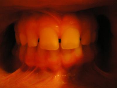 http://hildebear.cowblog.fr/images/Dents3petit.jpg